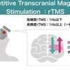 セラピストは必読!経頭蓋磁気刺激の知識:rTMS