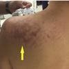 症例27:ダイビング後に左肩痛を発症した50歳女性(J Emerg Med. 2020 Oct;59(4):600-601.)