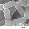 アトピーに良い効果をもたらす菌《アトピー用の乳酸菌サプリメント》