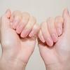 指を曲げると痛い!「ばね指」になっちゃいました(´;ω;`)ウッ…