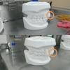 前歯部分矯正、いよいよスタート〜3ヶ月後には出っ歯とおさらば…!?