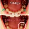 【大人の歯列矯正541日目】抜歯後11ヶ月、右下の抜歯痕が埋まったよ