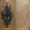 黒と黄色の腕タトゥーが薄くなりました。