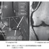 変形性膝関節症のMRI判定:WORMSについて