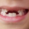 年少で抜け始めた乳歯。5歳、上の前歯も抜けました!