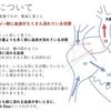 高肺血流high flow(ハイフロー)と酸素投与について  どういう子には酸素を使ってよくて、どういう子は駄目か?  ~基本49~