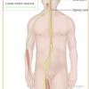 筋萎縮性側索硬化症について。