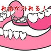 部分入れ歯が外れる!