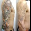 圧倒的症例数 ピコレーザー(エンライトン)でタトゥーを除去しています。 10回治療後です。7色