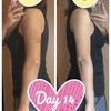 二の腕の脂肪吸引【術後14日目】比較写真あり