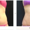 脂肪吸引の圧迫方法をお教えします♪