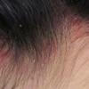 AGAの鑑別診断 粃糠性脱毛症について