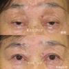 黒目の中心がでていないのは病気です。重度の腱膜性眼瞼下垂症の治療  70代 女性 挙筋前転