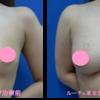 脂肪吸引&豊胸手術でスタイルアップ&バストアップ