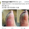 【勝田レポ②】忍び寄る足裏の異常(10-30km)