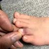 足の指の打撲の痛みを緩和