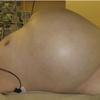 症例71:航空機内で腹痛と呼吸困難を発症した83歳男性(Ann Emerg Med. 2012 Oct;60(4):423, 430.)