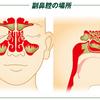 それ『蓄膿症』かもよ!?眼底・歯が痛い。熱・風邪の症状がある。