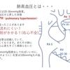 小児循環器の心エコーについて(肺高血圧の推測) 〜エコーをあてない人はここだけ見て!その2〜 基本19
