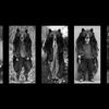 [特別展]★坂巻正美 けはいをきくこと 北方圏における森の思想(チパシリ)展