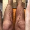 【高位脛骨骨切り術】術後53日 小顔。