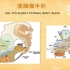 TFSによる骨盤臓器脱手術(3)