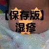 【保存版】赤ちゃんの湿疹。予防からホームケアまで