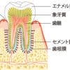 子供の歯がなんか黄色い!これって虫歯?