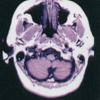 【脳画像】各高さの見方