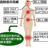 低用量ピルと血栓症
