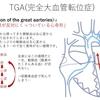 完全大血管転位症(TGA:) 血行動態、mixing、BAS(心房中隔裂開術)について ~ 疾患12