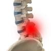 脊柱管狭窄症はどのような病気か自分でよく理解しておくことがとても大切です
