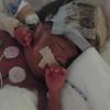 超低出生、超早産児の初めての手術。水頭症になったため、シャント手術を行うことに。