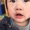 【卵ボーロで嘔吐&湿疹】卵アレルギーなの!?経過とアレルギー検査についての体験談