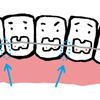 下の歯のフロス事情〜day79〜