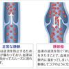 足の血管がボコボコ、色も変わってきた…下肢静脈瘤の治療