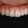 精密審美歯科のセラミック 今だけ!無料カウンセリング実施中 銀座しらゆり歯科