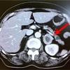 副腎が腫瘍の大きさだと言われました(ㆀ˘・з・˘)症状と治療法