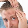 【私も患者さんです!】写真で見るAGA治療の効果と注意点