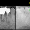 抜歯後の治療方法