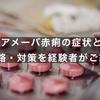 アメーバ赤痢の症状と感染経路・対策を経験者がご紹介!!