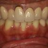 オールセラミックの歯茎が下がってしまったときの新しい審美歯科治療