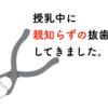 【授乳中】親知らずの抜歯の経過報告