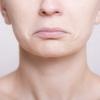 口角炎で唇の端が切れて痛いとき 対処法は?