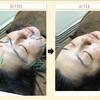 美顔鍼の効果