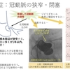 完全大血管転位症(TGA:) 術後に注意すべき点 ~ 疾患15
