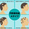 円形脱毛症の治療は効く!専門家に相談しよう