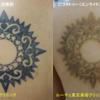 背中のタトゥーのインクを消します