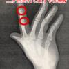 あなた人差し指の第一関節が折れてるって言いましたよね?