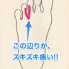 モートン病 足指の付け根が痺れるように痛い!!原因は??予防は??